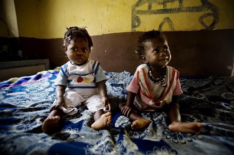 非洲饥饿儿童